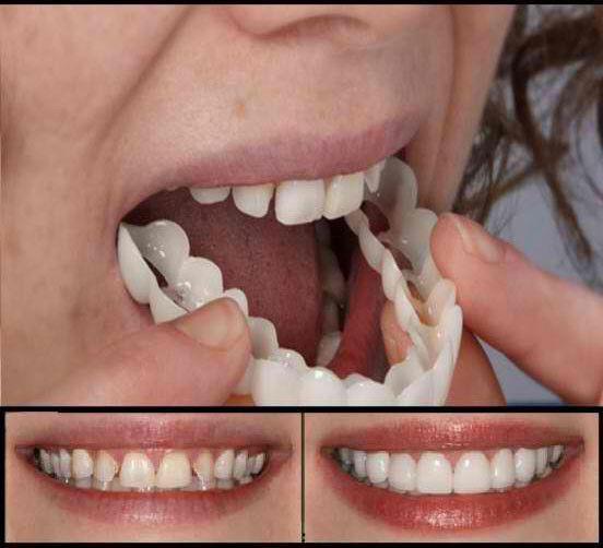 لمینت دندان اسنپ ان اسمایل تک فک