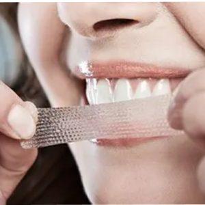 چسب سفید کننده دندان