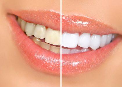 چسب سفید کننده دندان 3عددی
